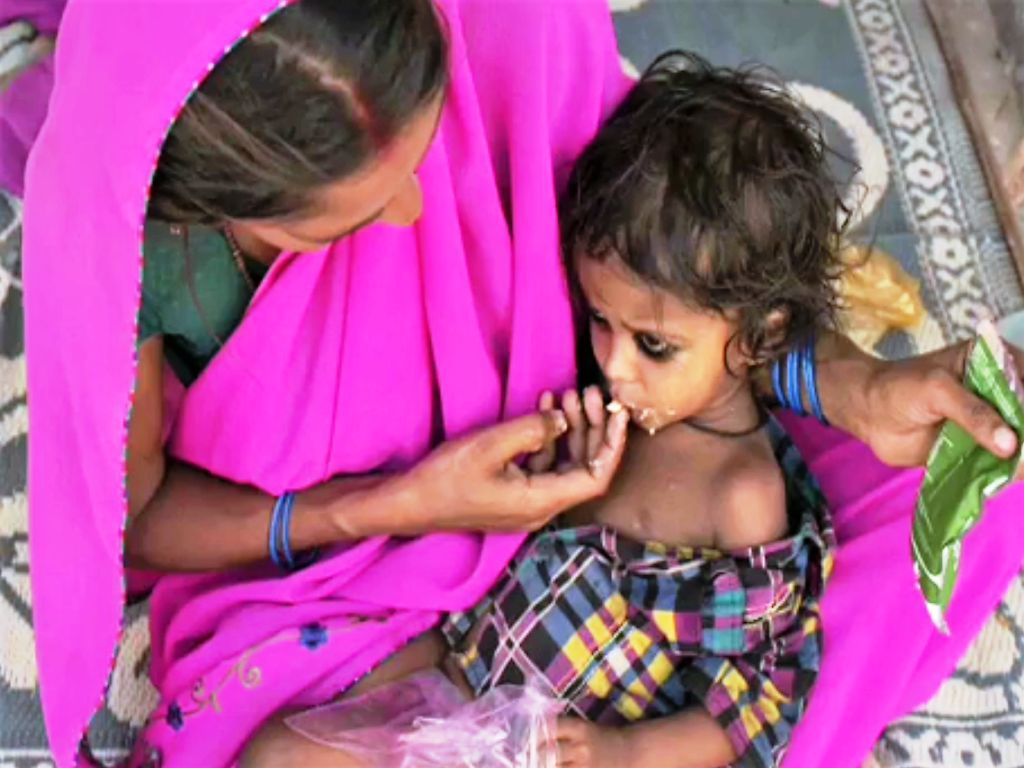 Tribal Issues – Links to Malnutrition
